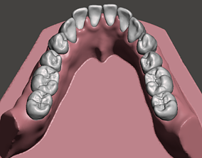 Mandibular dental model