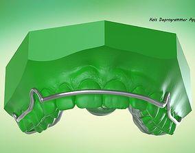 Digital Kois Deprogrammer 3D printable model
