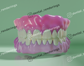 3D Complete dentures - prostheses