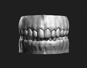 3D Teeth Sculpt for Production