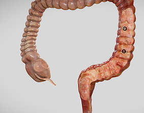 3D model Ulcerative Colitis