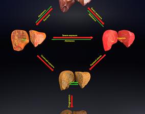 Alchoholic liver disease cirrhosis hepatitis 3D model