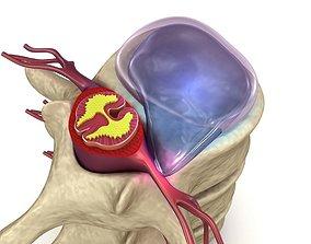 Hernaited disc in human spine in details 3D model
