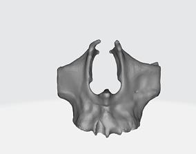 Zygomatic Bone 3D print model