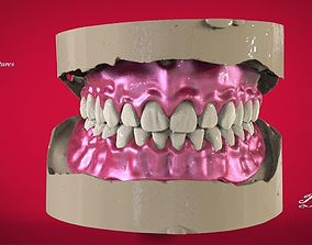 Digital Full Dentures with 3D printable model 1