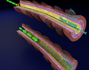 3D model Asthma bronchiole obstruction