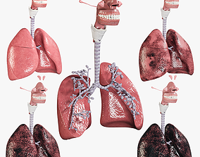 3D Respiratory System Collection - Smokers Lungs Stages