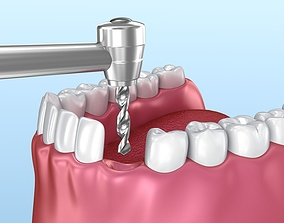 3D model Dental implant animated instalation