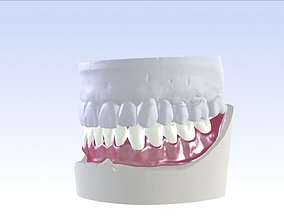 Digital Single Jaw Full Denture 3D printable model