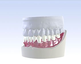 Digital Single Jaw Full Denture 3D printable model