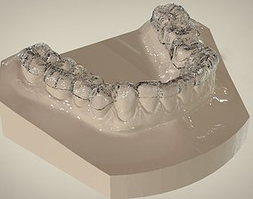 3D printable model Digital Dental Lower Overlay Hard