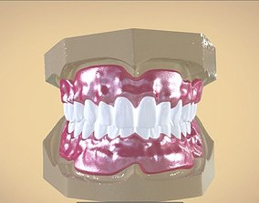 Digital Full Dentures 3D print model