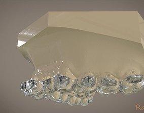Digital Orthodontic Indirect Bonding 3D printable model