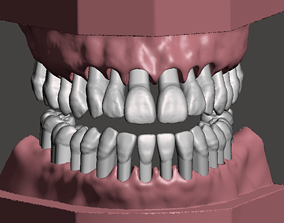 tooth Maxillary and Mandibular dental models