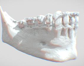 3D printable model JAW OF Felipe Lopes Machado