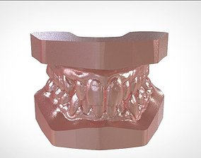 3dprint Digital Study Orthodontics Archman Models