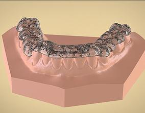 3D print model Digital Tanner Ortho Repositioning Splint