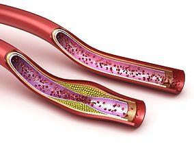 Blood vessel - normal and cholesterol damaged 3D model
