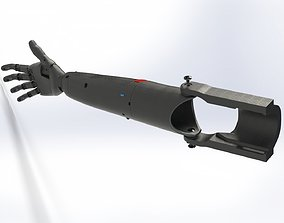 prosthesis arm 3D printable model