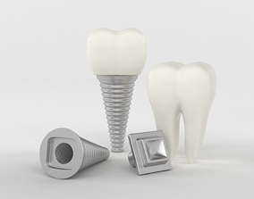 Tooth Implants 3D