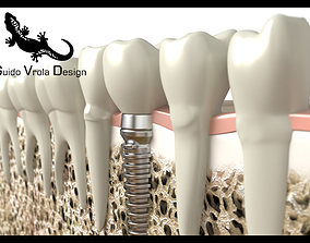 3D Dental implant