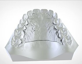 cad Digital Cranham Deprogrammer 3D print model