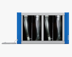 3D Medical - XRay Light Box