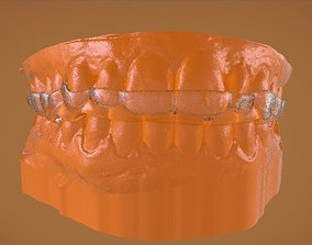 3D printable model Digital Bite Raising Splint