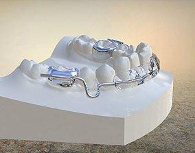 dentistry Digital Lip Bumper Appliance 3D printable model