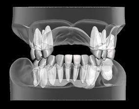 Partial edentulous model with individual teeth