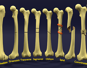 3D Fracture types labelled