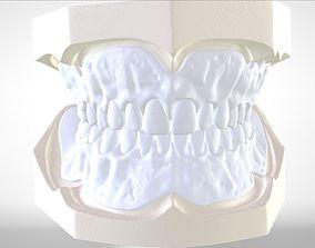 Digital Try-in Full Dentures for Injection 3D print model