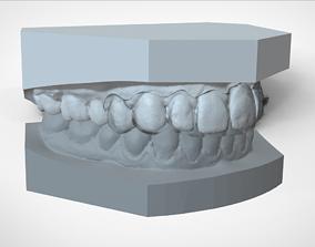 3D printable model Digital Ortho Mini Deprogrammer Splint