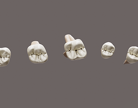 Maxillary Class 1 Caries 3D asset