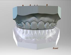 Digital Bite-guard Appliance 3D printable model