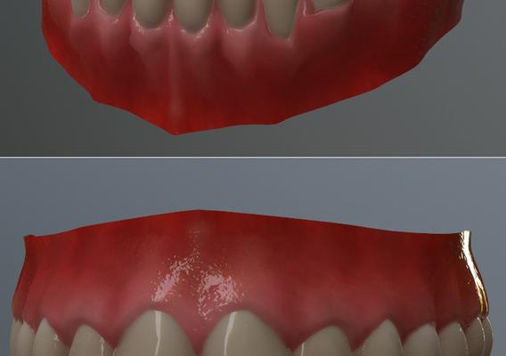 Teeth Toung