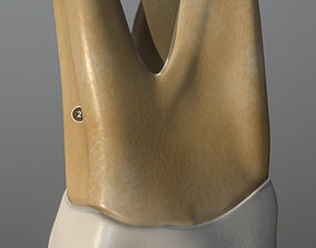 Maxillary First Molar 3D model