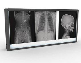 XRay Light Box 3D