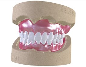 Digital Full Dentures with Combined 3D printable model 2