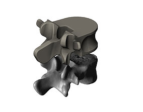 Reimagining of spinal vertebrae 3D printable model