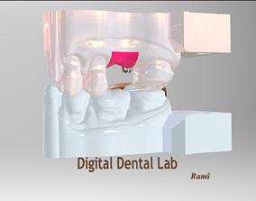 abutment Digital Ti-Base Abutment Model