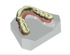 Splint Design 3D print model