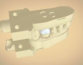 Digital Dental Quadrant Model with a Full Contour