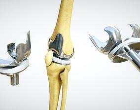Knee endoprosthesis 3D model