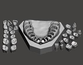 Dental Sample model