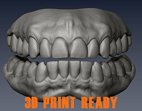 Real Teeth 3d scan for 3d print