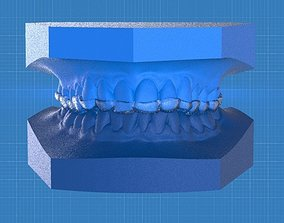 Ortho Anterior Repositioning 3D printable model