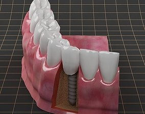 3D Dental Implant 01