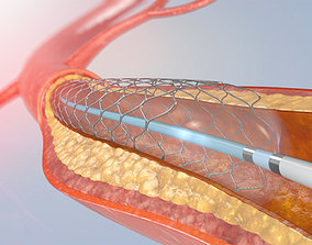 Blood vessel and Medical Artery Stent 3D
