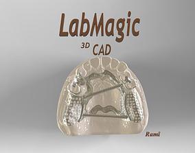 3D printable model Digital Removable Partial Denture